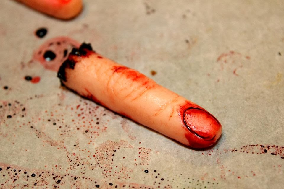 Severed Finger