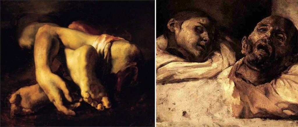 Gericault anatomical studies are among the most disturbing pieces of art
