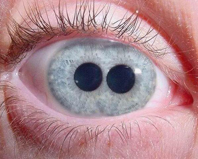 The eye of a person with Pupula Duplex.