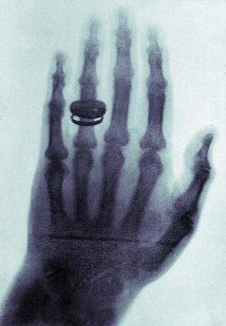 The world's first X-Ray.