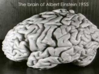 Einstein's brain would have to be one of t he strangest things ever stolen