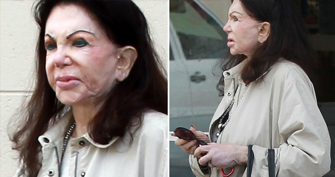 These are the craziest plastic surgeries.