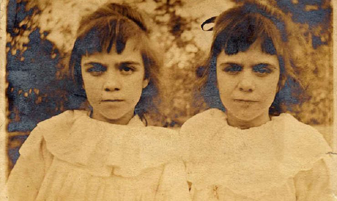 The Pollock Twins are one of many mysterious events that people struggle to comprehend