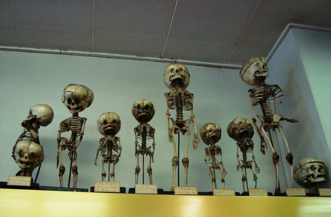 The Musee Depuytren is one of the Creepiest Museums in the World