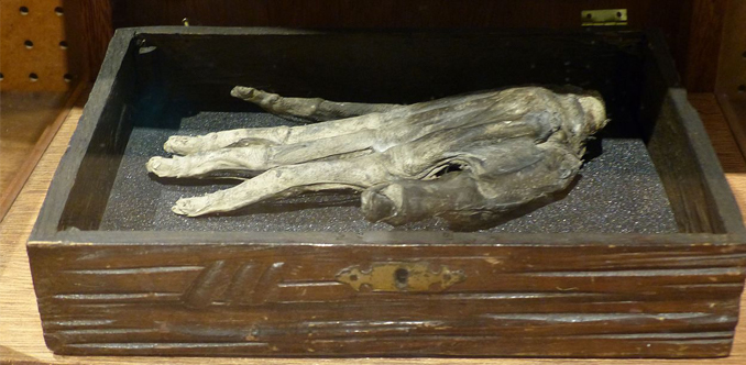 Photo of The Hand of Glory at Whitby Museum. One of many paranormal mysteries that remain unsolved.
